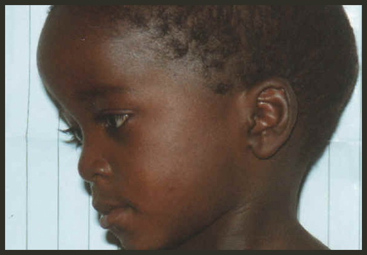 Abnormal head shape in a child with XLH